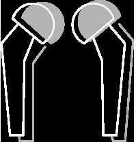 Hip Implant Failures